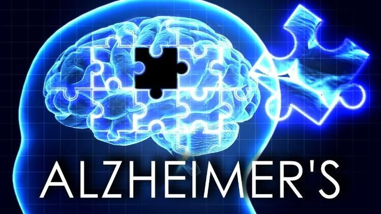 Alzheimer's linked to gum disease